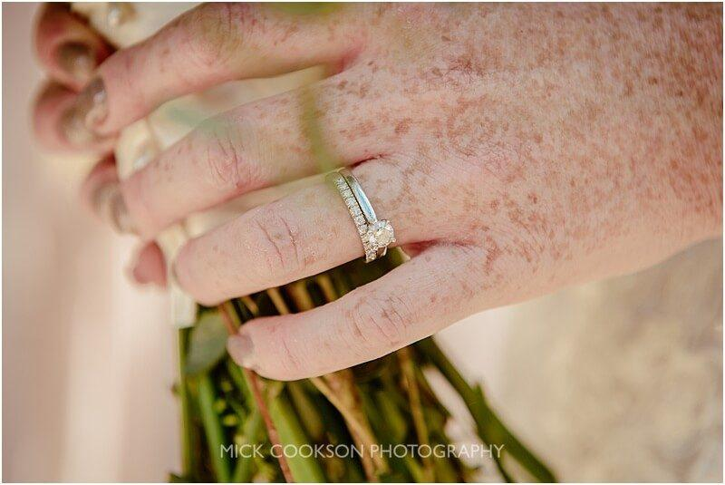 wedding rings on a freckled hand